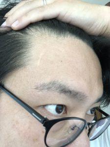 前髪を上げて額の傷後を見せている現在の僕の画像